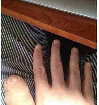 Spuchnięty kciuk